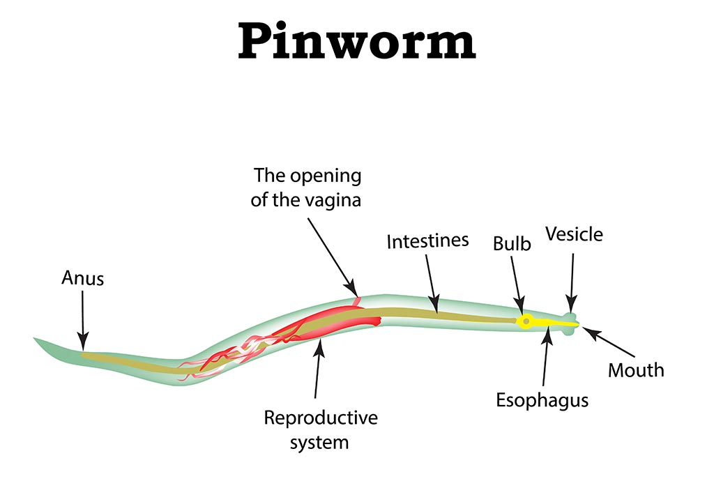(PINWORMS) infection and enuresis - csrb.ro - Enterobiasis symptoms