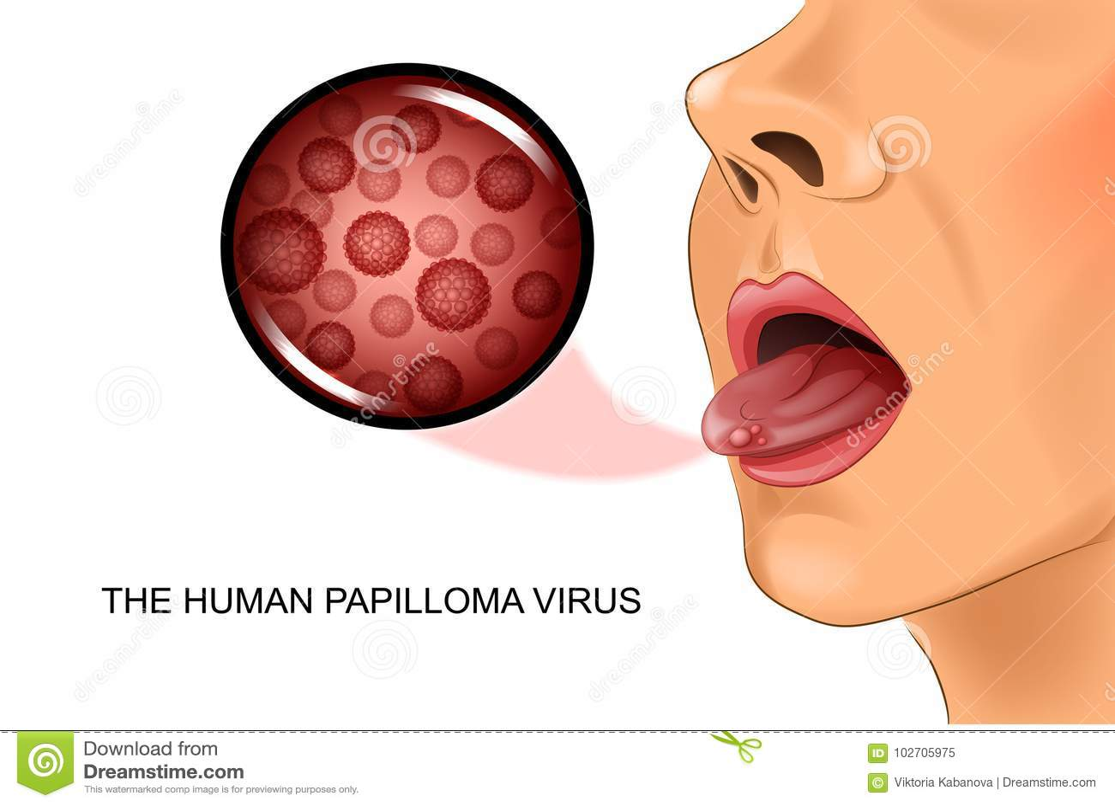 Papillomavirus genital humain - Papillomavirus humain genitaux