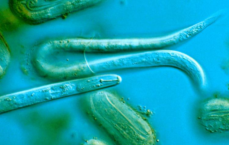 Un leac sigur și eficient pentru viermi