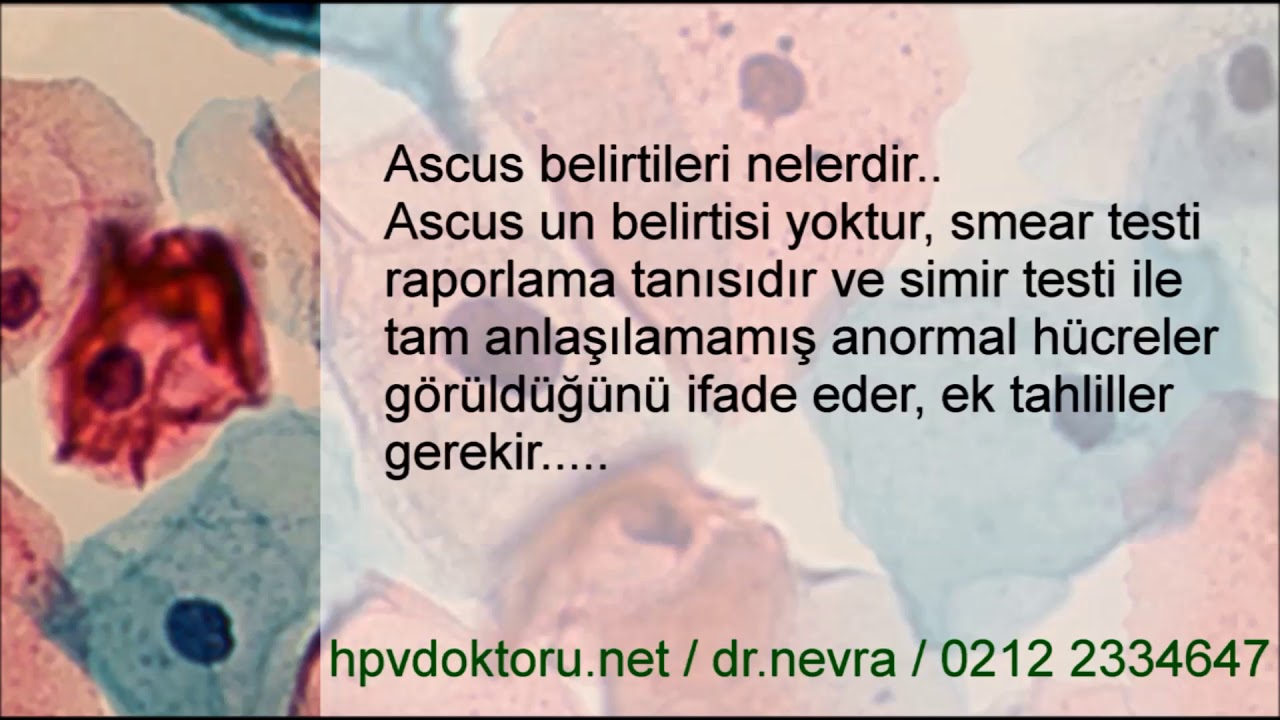 hpv ascus nedir