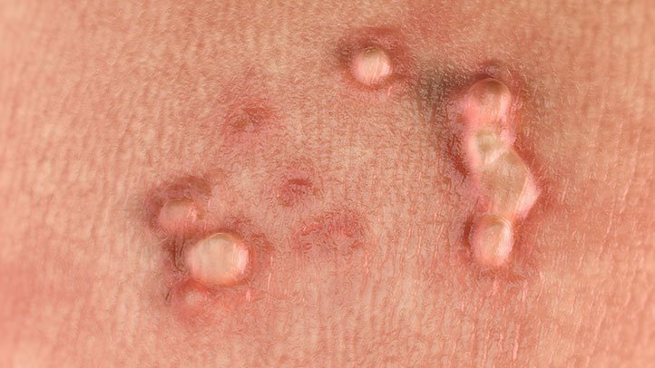 hpv skin treatment