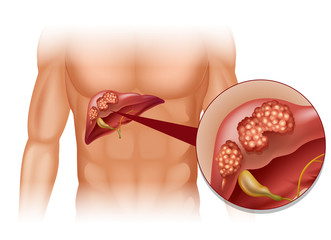 cancer hepatic simptome