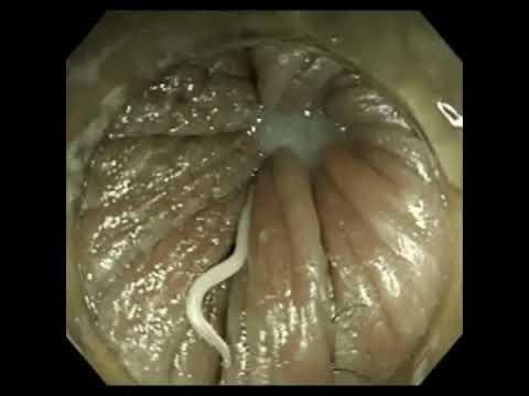 Tratamentul cu viermi pinworms al simptomelor adulților - csrb.ro