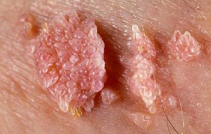 Cauzele condilomului în timpul sarcinii, diagnosticului și tratamentului - Sarcom September