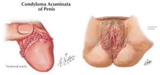 Human Papilloma Virus (HPV) si REVOLUTIA SEXUALA | SACCSIV - blog ortodox, Human papillomavirus mk