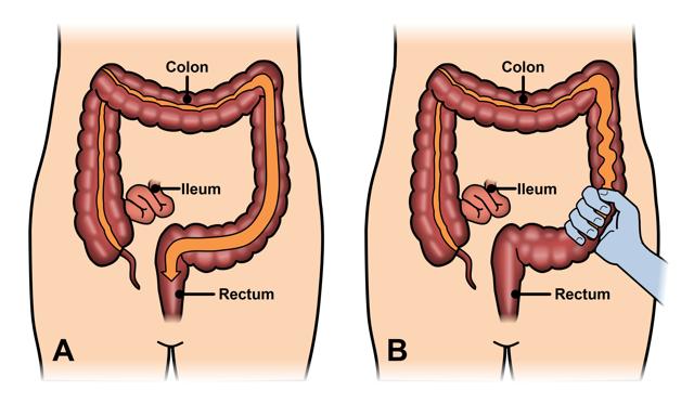 Can hpv cause colorectal cancer. Vor vindeca viermii