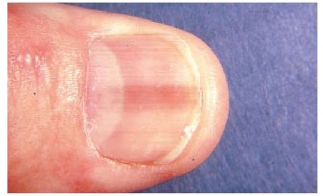 cancer la unghie vaccino papilloma e gravidanza