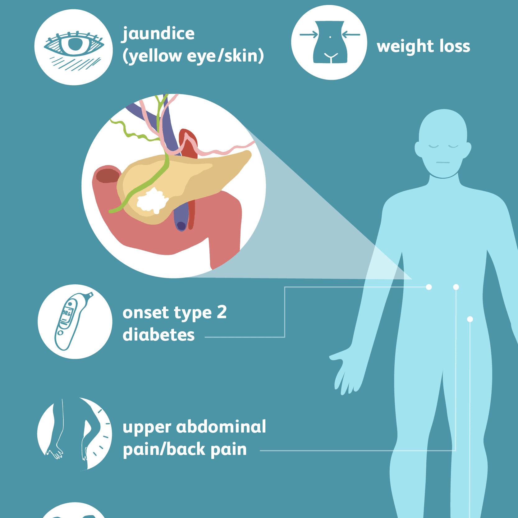 pancreatite - Traducere în engleză - exemple în română | Reverso Context