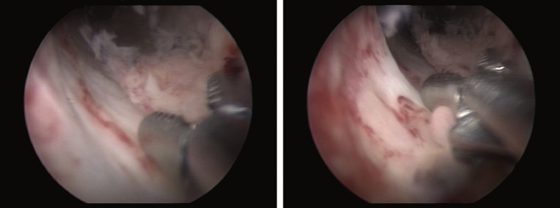 can hpv cause urethral cancer pasozyt giardia u psa