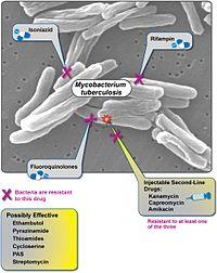 Reîncepe războiul cu bacteria