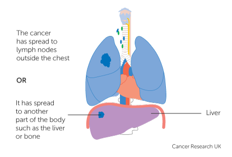 sarcoma cancer spread to lungs
