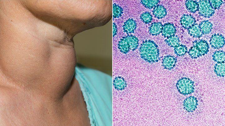 hpv virus in neck cancer prevenirea și tratarea viermilor umani