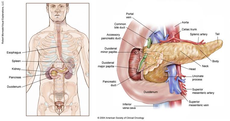 cancer pancreatic body giardia besmetting bij mensen