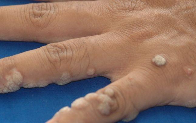 cum se vorbește negi plantare pe picioare rimedi naturali per il papilloma virus