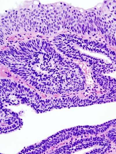 Papilloma urinary bladder histopathology - csrb.ro