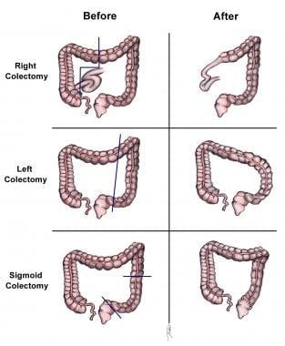 cancer in hepatic flexure