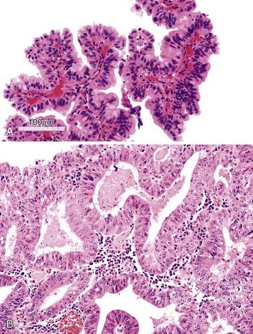 Papillary lesion gallbladder