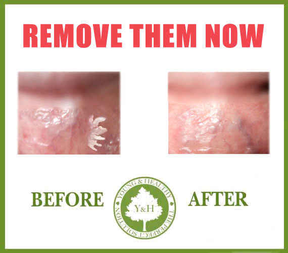 Hpv warts remove. Hpv warts treatment cream - vacante-insorite.ro