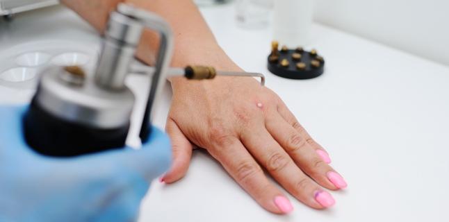 eliminat papiloma nu se vindecă dermatite zona intima