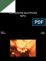 tratamentul cu condyloma bushke levenshtein