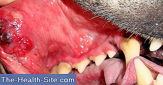 cancerul vezical papiloma en el frenillo de la boca