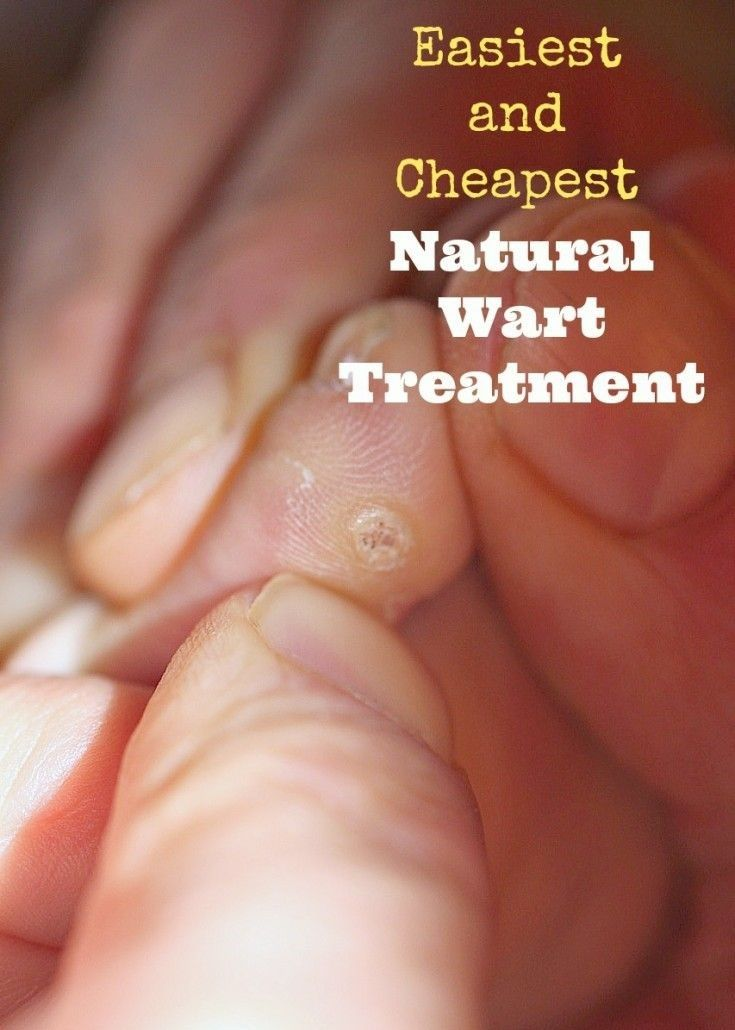 warts effective treatment
