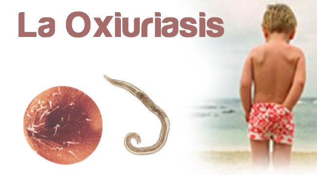 Enterobiasis symptomen - Infecția parazitară cu oxiuri — Telios