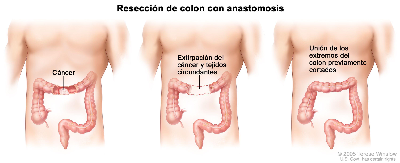 Cancer de colon metacronico definicion