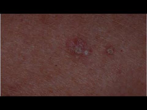 Hpv impfung nach ansteckung, Varicele organele genitale 2 grade