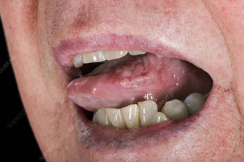 papiloame pe limba