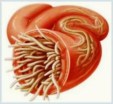 tratamentul viermilor de tip viermi la om apar papiloame și negi