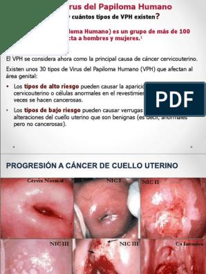 virus del papiloma bajo riesgo negi pe brațe au început să apară