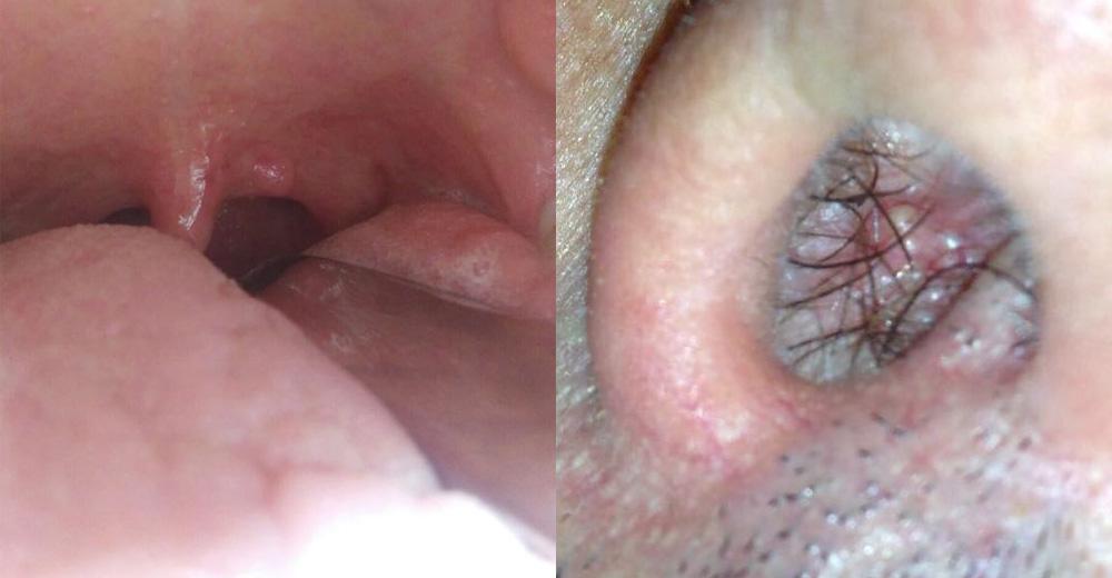 Lesione papilloma della lingua, Esofago patologie