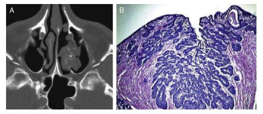 papiloma nasal tipos