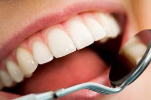 prevenirea bolilor dentare