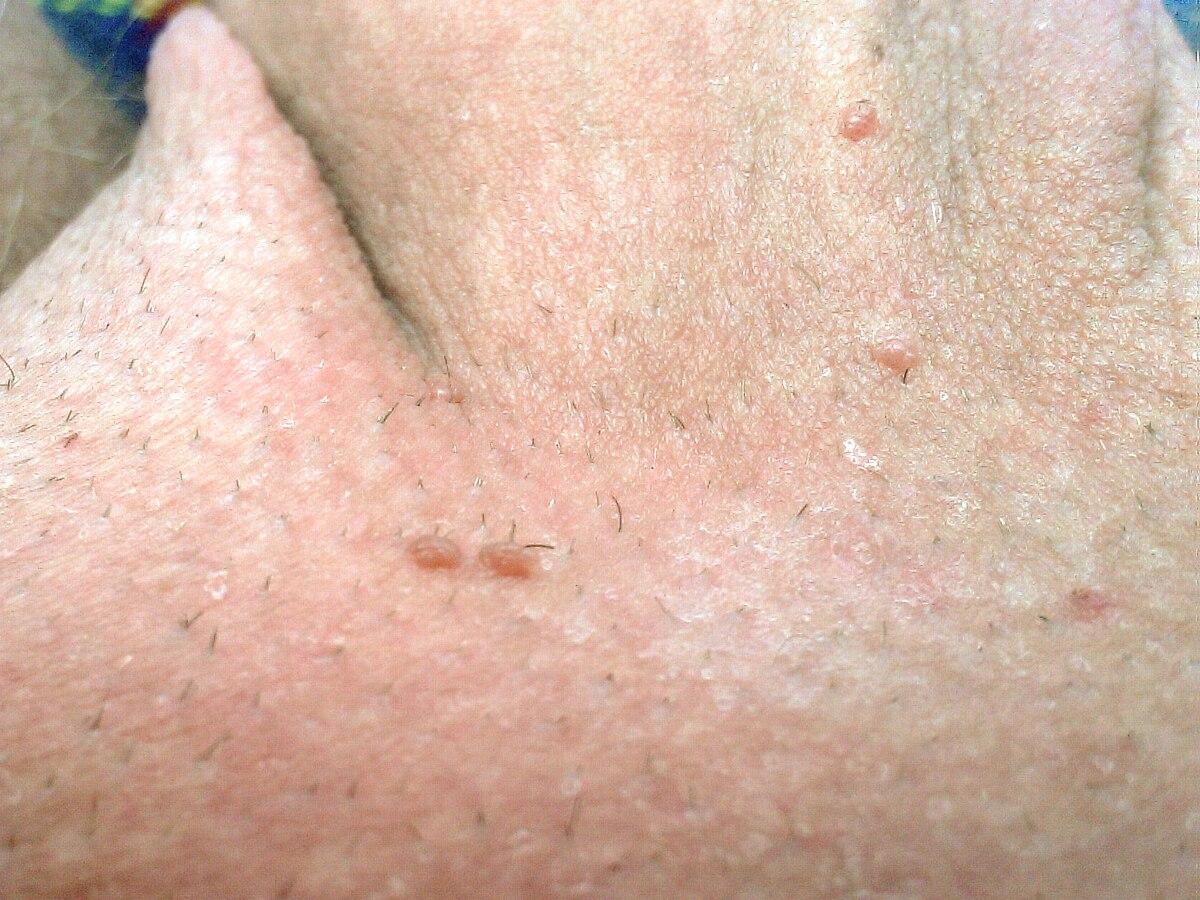 krema protiv papilloma cancer for metastatic