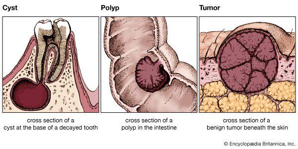 benign cancer cyst