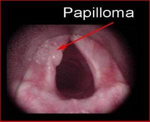 papiloma laring pada anak în patogeneza giardiozei