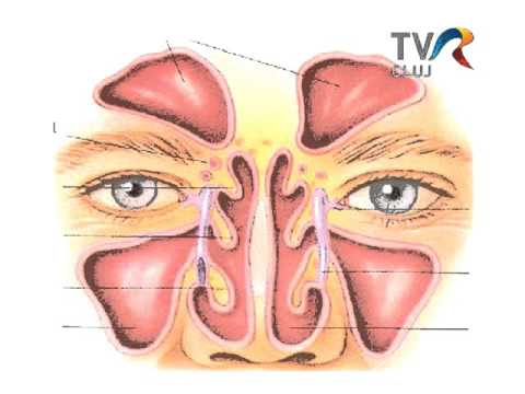 Rinosinuzita acuta