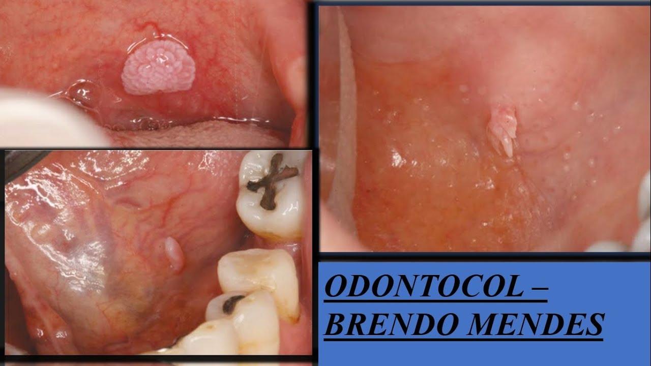 Lesiones de papiloma en la boca