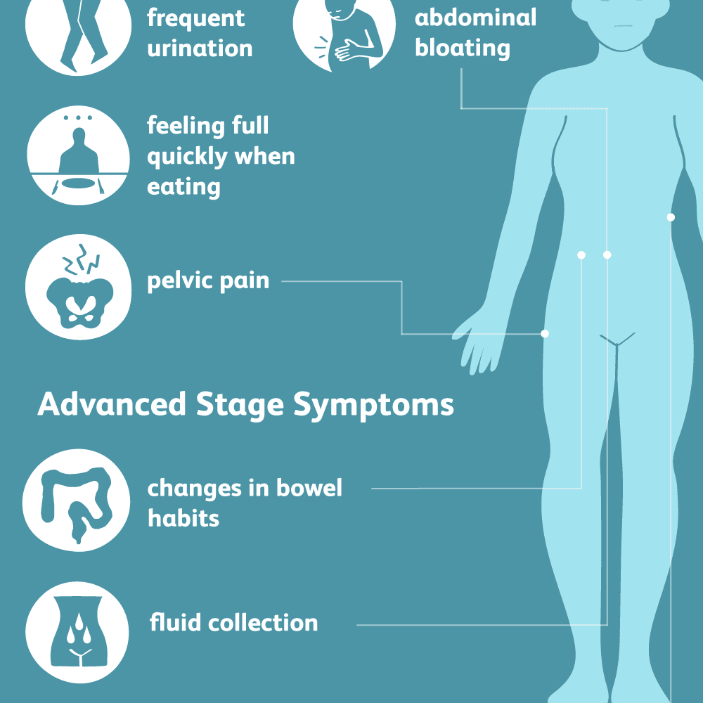 Sintomas de enterobiasis. Traducerea «amebiasis» în 25 de limbi - Sarcoma cancer warning signs