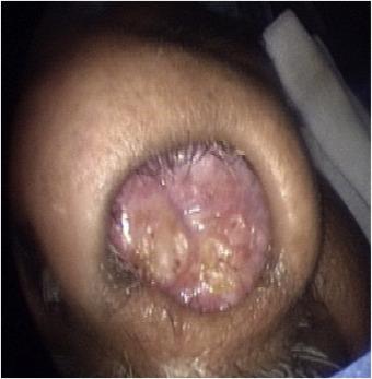 what is nasal papilloma