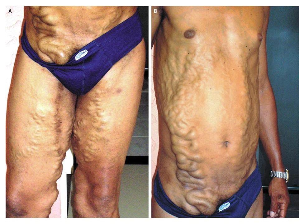 Schistosomiasis patient Papilloma virus sintomi ano