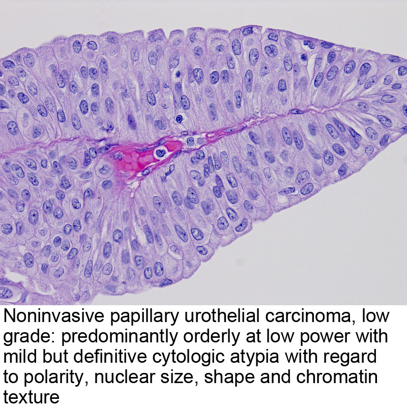 Papillary urothelial hyperplasia icd 10 - Inverted urothelial papilloma icd 10