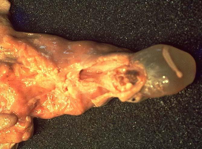 tenioza hidatigenă la om