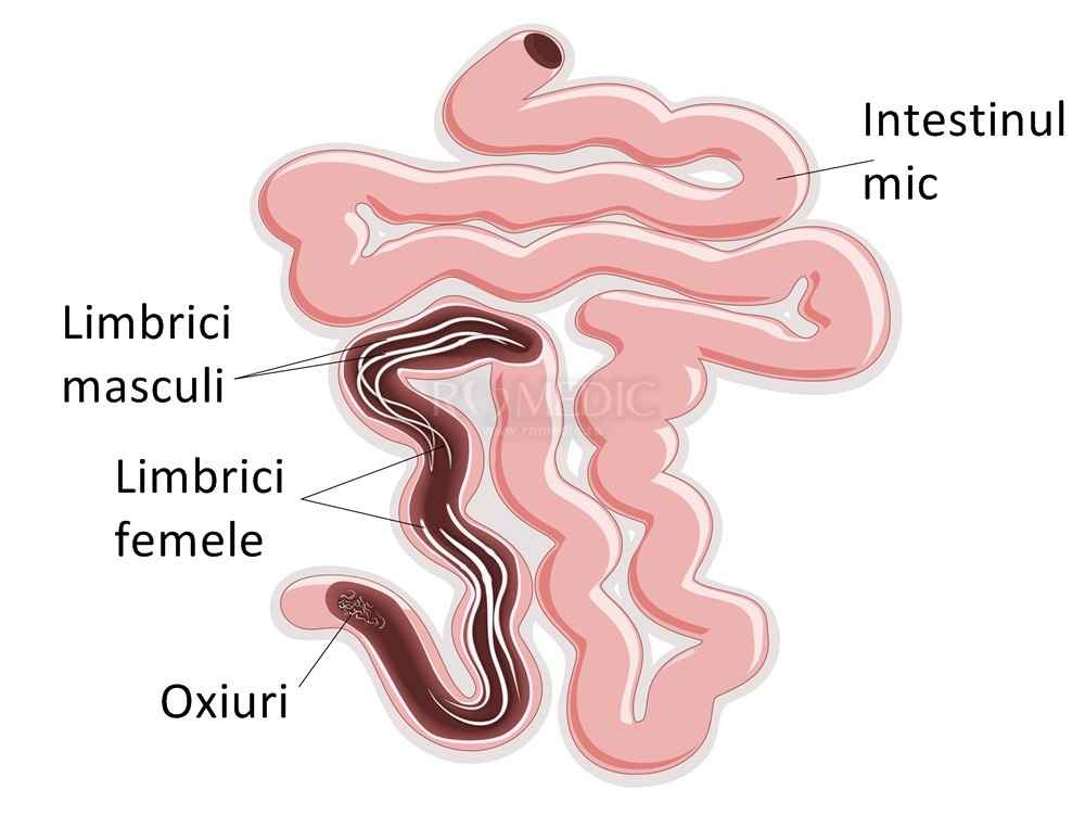 paraziți în tratamentul intestinului gros