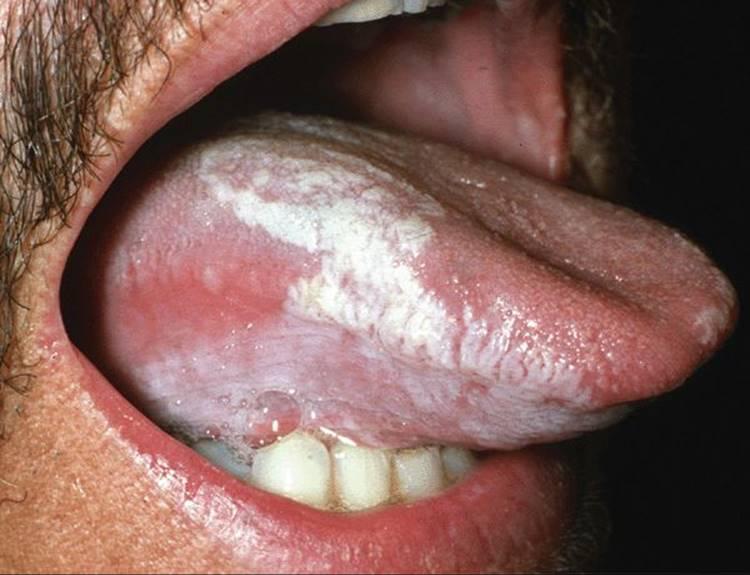 cum să tratezi viermi la oameni îndepărtarea papilomelor prin electrocoagulare