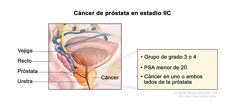 Cancer de prostata definicion - csrb.ro