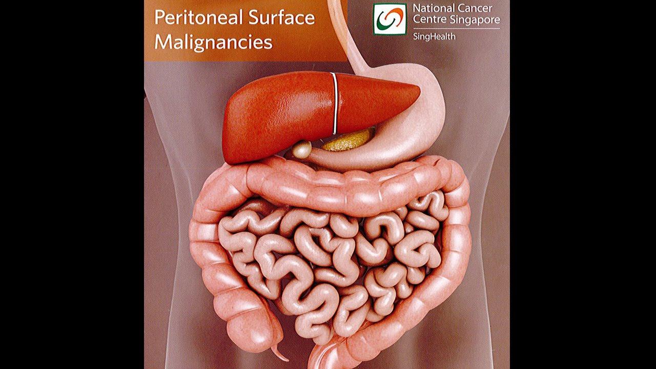 Endometrial cancer peritoneal metastasis. Mucho más que documentos., Cancer in peritoneal cavity