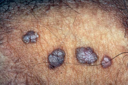 Infecția HPV